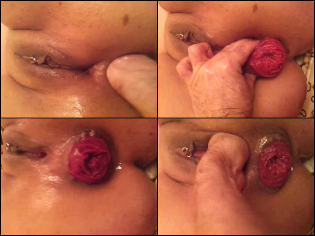 Closeup Prolapse Porn Videos