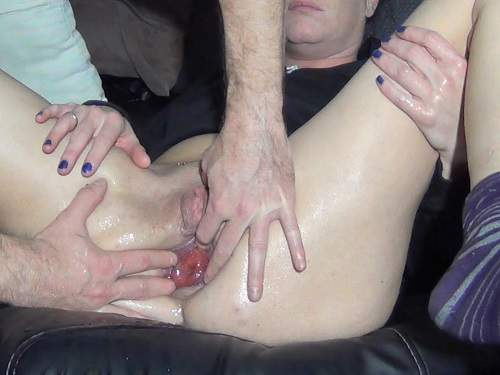 Anal rosebud loose husband after anal fisting