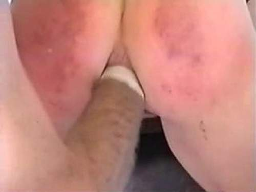 Awesome homemade bloody anal fisting
