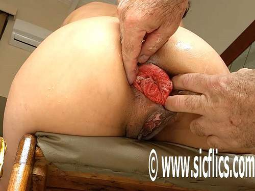 Amazing mature gets fisted and champagne bottle in anal prolapse