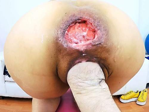 Anna asshole destruction – FullHD anal prolapse video