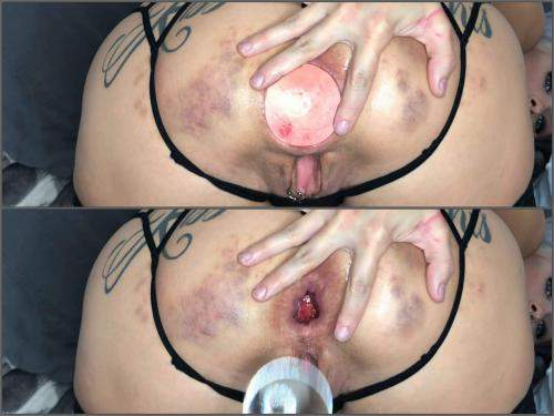 Couple fisting – LilySkye huge glass anal plug and balls in gaping hole