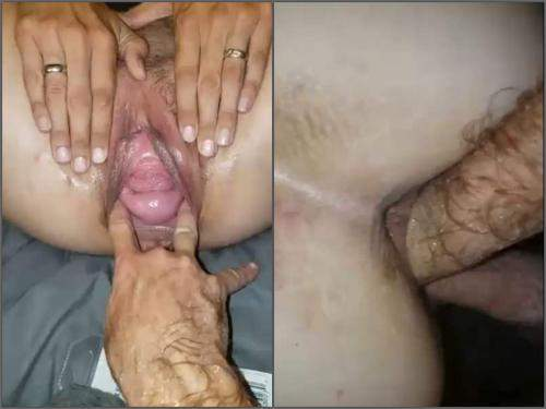 Pov fisting – POV fisting sex and husband stretched wifes pussy gape