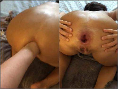 amateur gaping anal couple