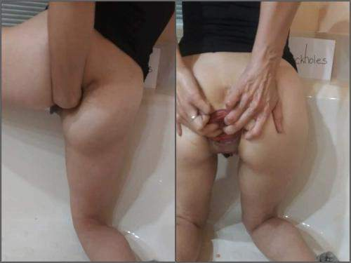Anal fisting – Large labia girl anal prolapse loose in the barhroom