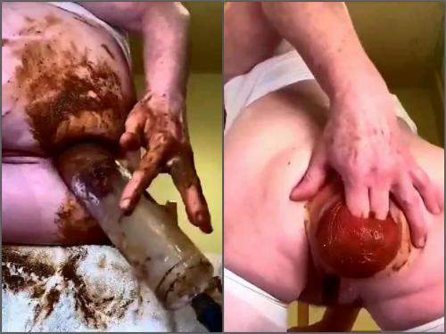 Anal fisting – Amateur kinky MILF shitting anal prolapse pump extreme