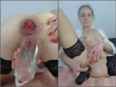Prolapse ass - Kinky german girl JanaBellaCam squirt during anal prolapse show