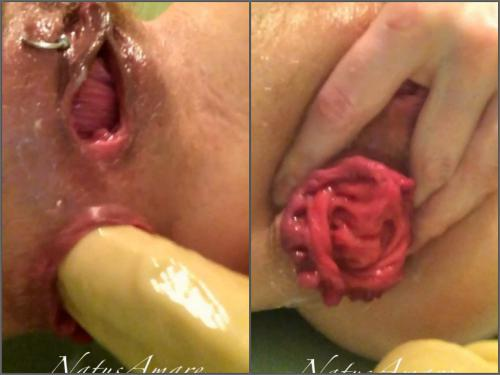 Anal prolapse – Perverted piercing pussy russian queen Natusamare self prolapse loose