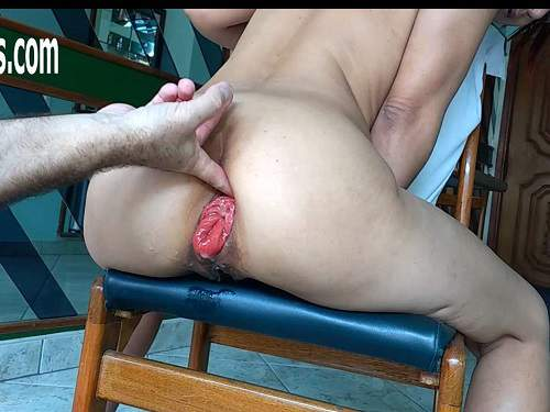 Prolapse porn – Wine and champagne bottles insertion deep in sweet prolapse anus