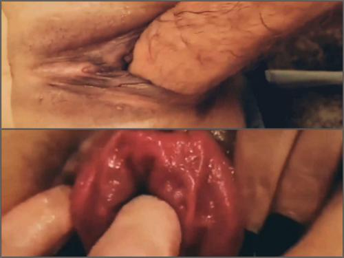 Pussy fisting – Amateur pussy and anal prolapse loose during hard fisting sex POV