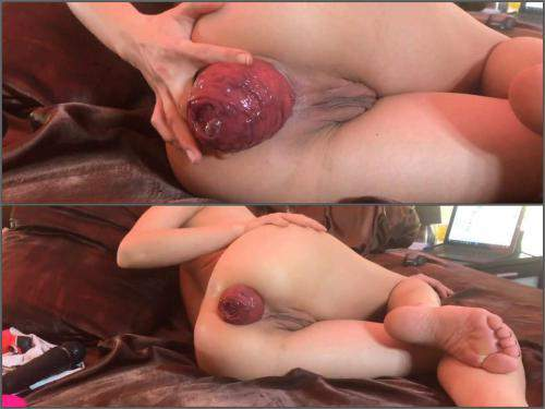 Skinny – Amateur skinny wife show her really shocking size prolapse anal