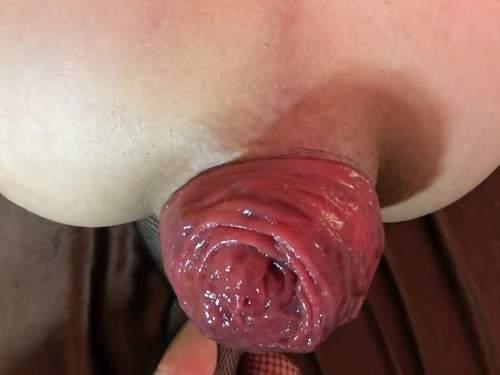 Anal prolapse porn