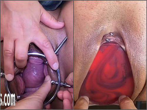 Pussy prolapse – Amazing pussy speculum examination and penetration colossal dildo after
