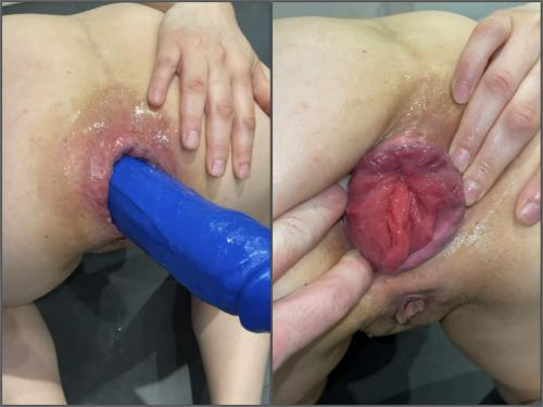 Prolapse porn – M687pro big blue dildo with the balls in ass – Premium user Request