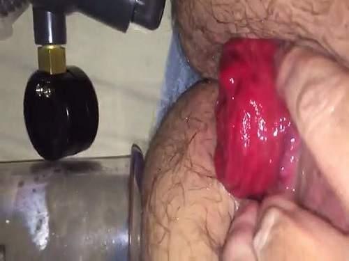 Hairy ass – Monster size anal prolapse after ass pumping