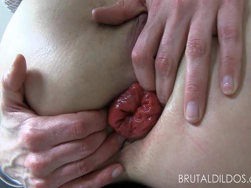 Dildo anal – Holly Hanna ruined huge anal prolapse very close