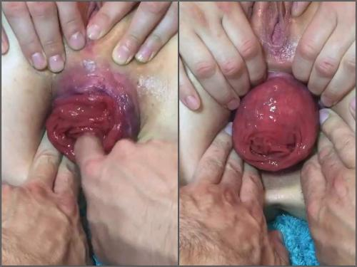 Fingering – Tawney Mae POV show her giant anal prolapse very close-up