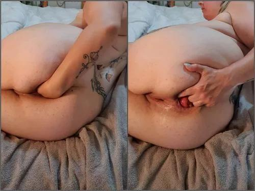 Amateur fisting – British pornstar Xrossetx anal fisting and prolapse – Premium user Request